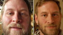 Il arrête l'alcoolet perd 20 kilos en sept mois...