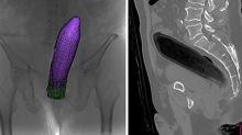 Un Japonais se retrouve aux urgences avec une aubergine… dans le rectum