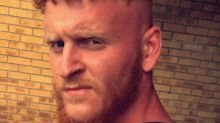 Scottish Man Bedridden as a Result of Not Wearing Sunblock