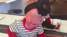 Anna, la bimba con la rara malattia che le fa spaccare la pelle