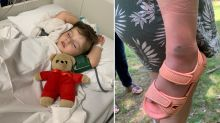 Boy, 3, 'paralysed' after being bitten by snake during family picnic