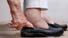 Inchaço nos pés: 5 possíveis causas do incômodo