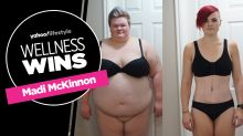 How weight-loss surgery helped one wife lose 271 pounds