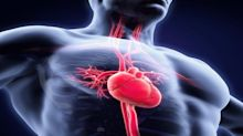 Cardiovascular Systems Rides on Launches Amid Coronavirus Woes