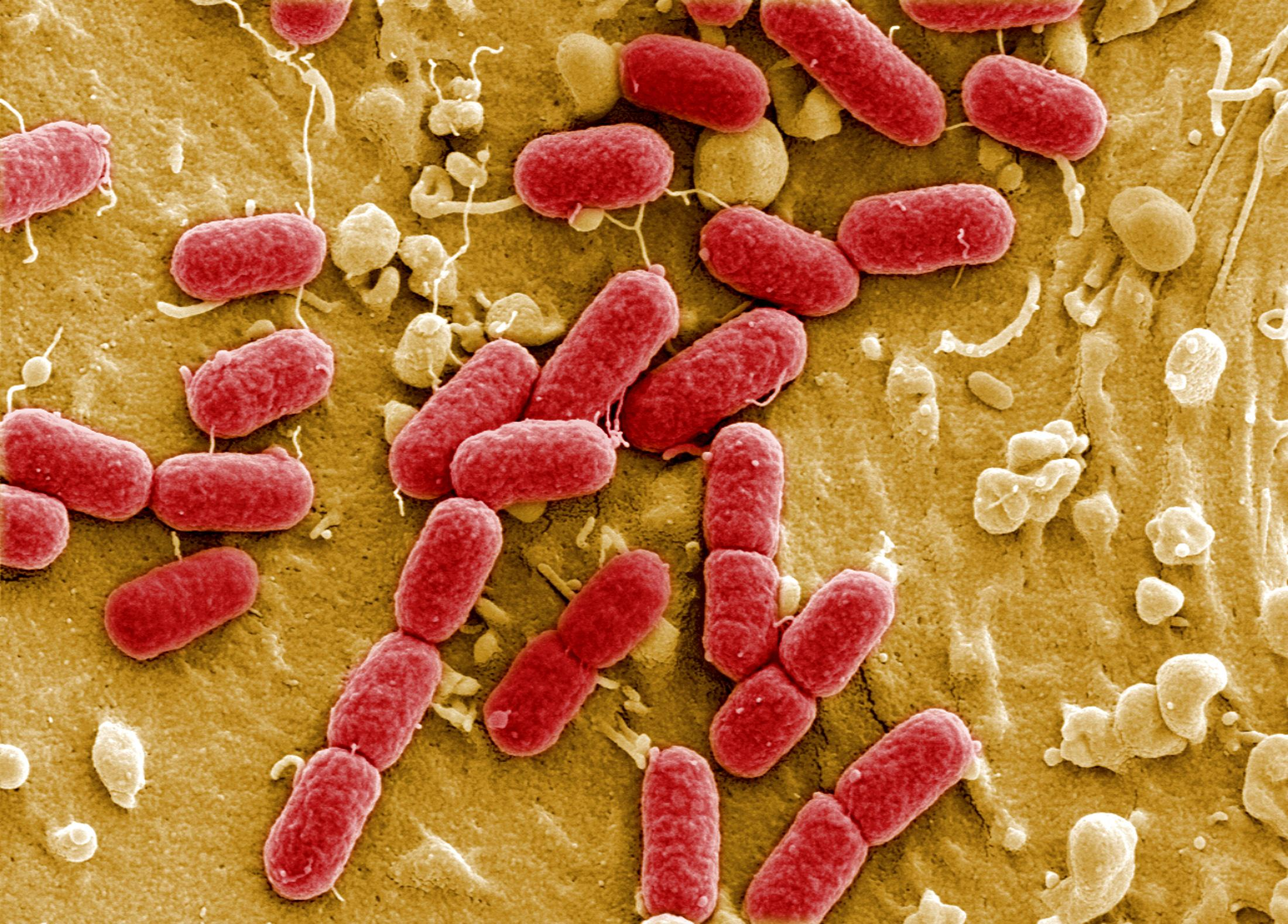 Bacteria on Fresh Meat and Other Foods Does