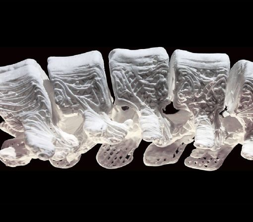 Surprisingly flexible 3D-printed bones could be used for treating fractures