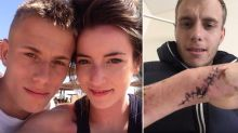 Starved, stabbed and burned: Man reveals horrific abuse at the hands of his girlfriend