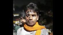 Shocking! Uttarakhand cops push key into forehead of man riding without helmet