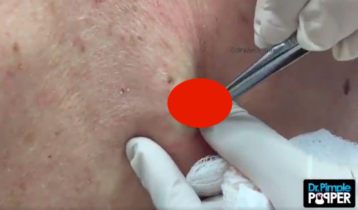 Dr Pimple Popper Removes A Bulging Rock Blackhead