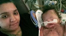 Mom of Baby Born Without Skin Can Finally Kiss Her 10-Month-Old Son After Life-Saving Transplant