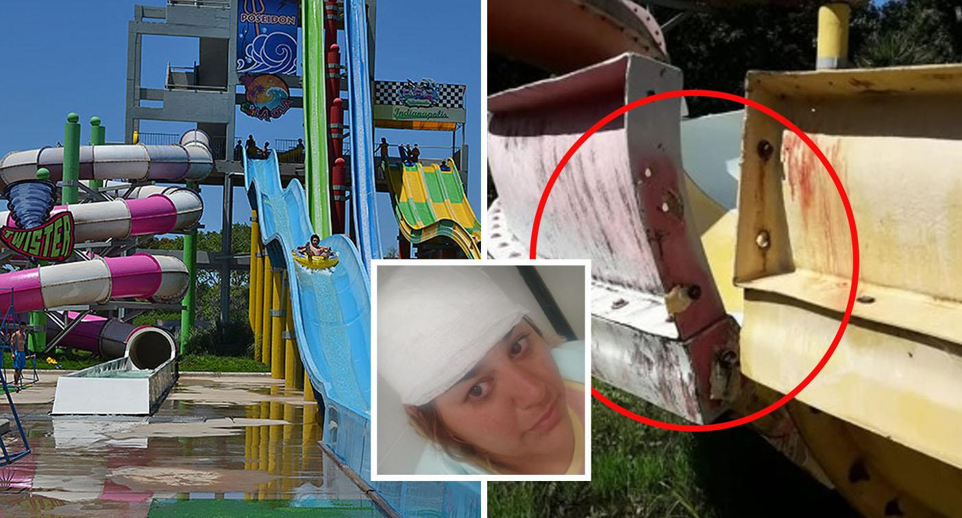 Couple hospitalised after 'nightmare' water slide accident