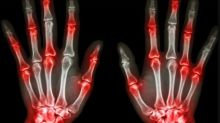 La temperatura de tus manos podría revelar si padeces artritis
