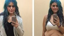 'I lost 190 pounds and this is my loose skin': Instagrammer gets real about weight loss effects