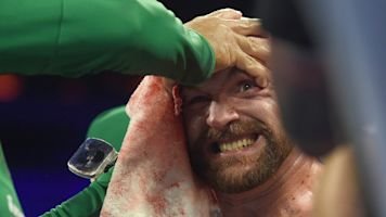 Bloodied Fury shows heart of a champion