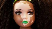 Muñecas con vitiligo para concientizar