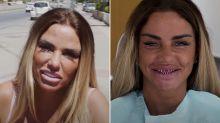 Estrela de reality show na Inglaterra perde os dentes durante viagem