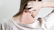 Why cases of adult eczema are on the rise – particularly in women