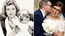 Bride born with severe facial deformity gets her happy ever after
