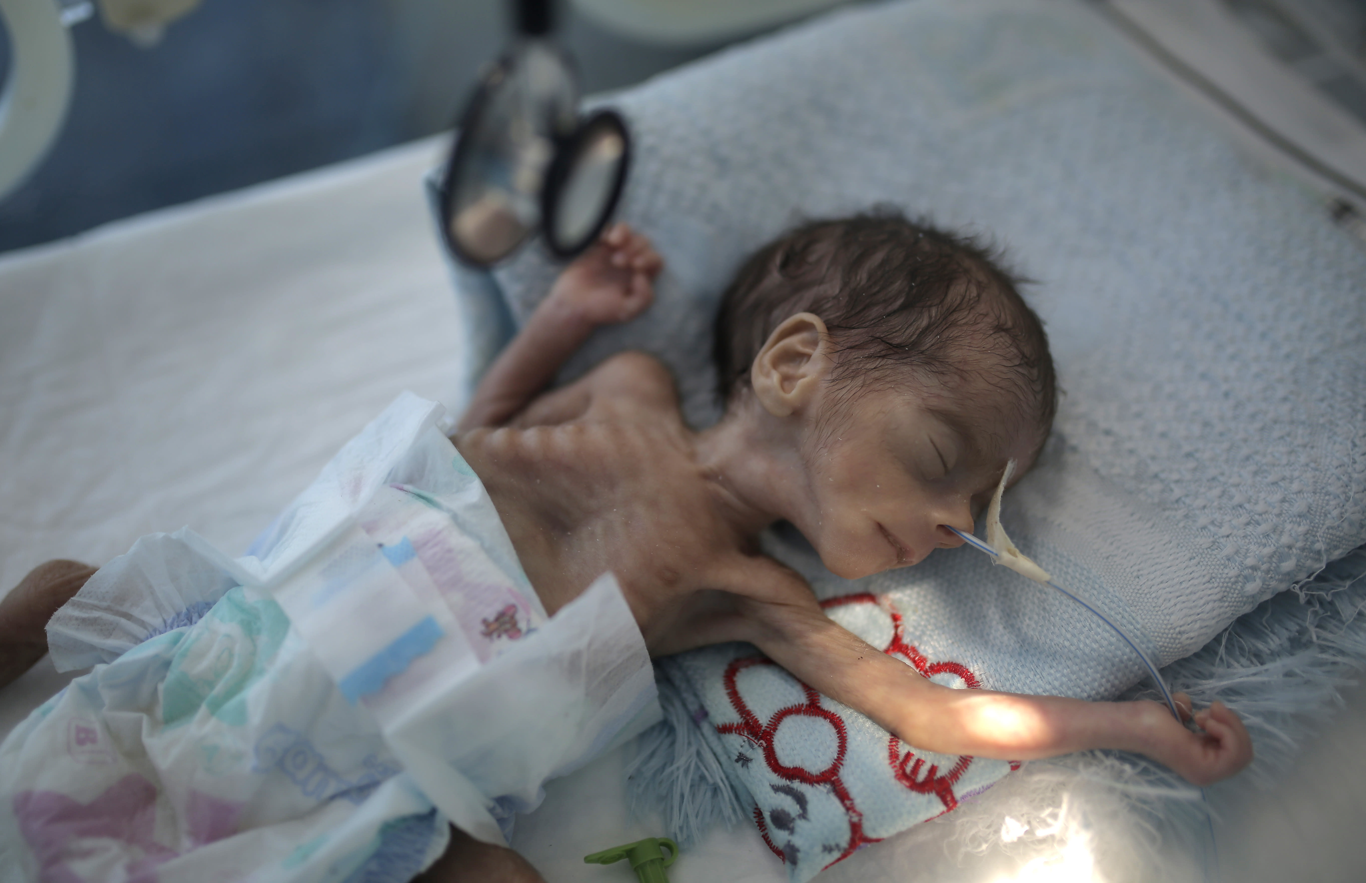"""FILE - In this Nov. 23, 2019 file photo, a malnourished newborn baby lies in an incubator at Al-Sabeen hospital in Sanaa, Yemen. The U.N. children's agency says that millions of Yemeni children could be pushed to """"the brink of starvation"""" as the coronavirus pandemic sweeps across the war-torn Arab country amid a huge drop in humanitarian aid funding. UNICEF on Friday, June 26, 2020 released a new report, """"Yemen five years on: Children, conflict and COVID-19."""" (AP Photo/Hani Mohammed, File)"""
