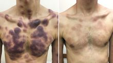 Tragic: 29-year-old man finds 'painless' marks on his body; dies of rare cancer