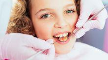 Manchas brancas nos dentes merecem atenção