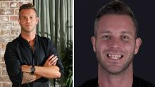 MAFS' Jake reveals $26k teeth transformation after admitting insecurity