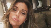 Renata Banhara denuncia marido por agressão: 'Ele acabou comigo'