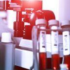 Biogen Inc (BIIB): Immense Growth Potential?