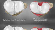 Peer Reviewed Results: Conformis Patient Specific iTotal CR Achieves Better Rotational Alignment and Tibial Fit Compared to Off-the-Shelf Implants
