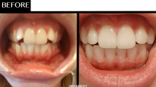 How One Woman Completely Made Over Her Smile in 4 Months—From Home