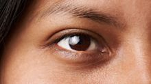 What Causes Dark Circles And How Do You Get Rid Of Them?