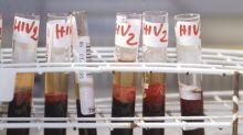 Aids: indagine, pazienti chiedono migliore qualità vita e terapie più tollerabili