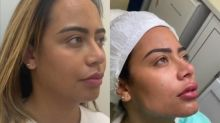 Rafaella Santos faz procedimentos estéticos e mostra antes e depois