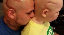 This Amazing Dad Got a Scar Tattoo to Support His Son Who Has Cancer