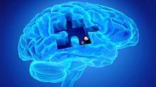 Parkinson colpisce sempre prima. Guarda tutti i sintomi