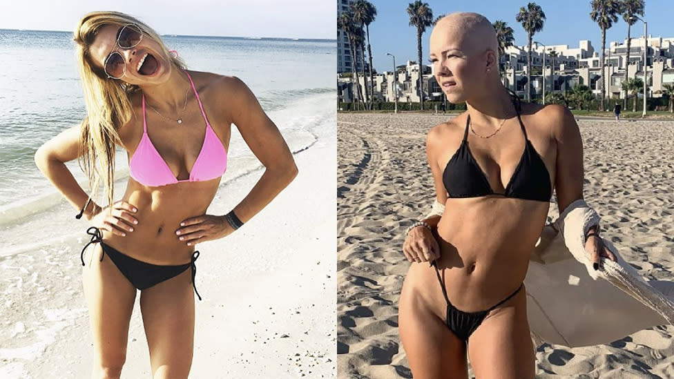 Bikini model with alopecia slated for Sports Illustrated cover