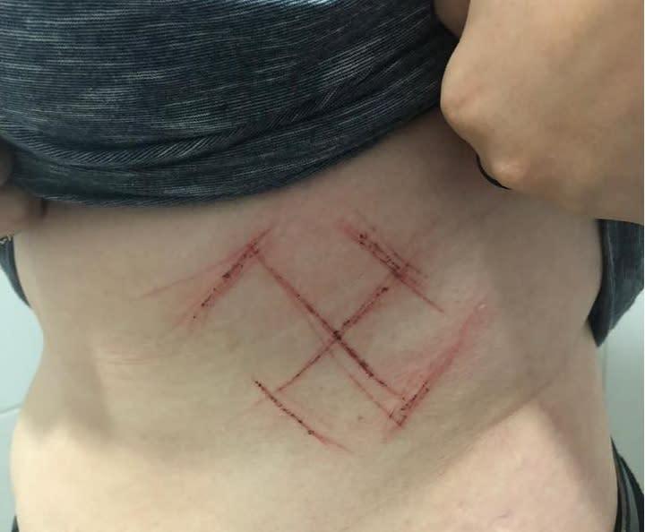 """Foto da matéria """"Agressores riscam suástica em jovem com camiseta de #EleNão"""""""