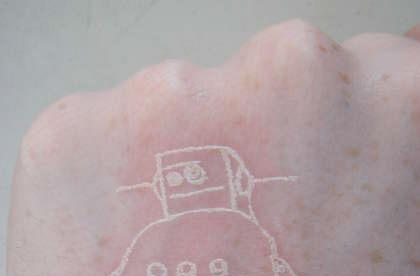 Laser-etched tattoos: don't try this at home, kids