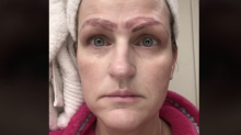 A Botched Beauty Treatment Left This Woman With 4 Eyebrows