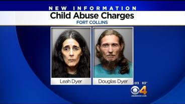 Parents Accused Of Ignoring Daughter's Seizures Charged With Child Abuse