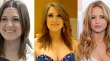 Jennifer Lawrence fan spends $25,000 on surgery to look like actress