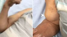 Farmer, 72, diagnosed with 'Popeye sign' arm