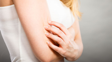 Keratosis pilaris: How to treat those 'chicken skin' red bumps on your arm