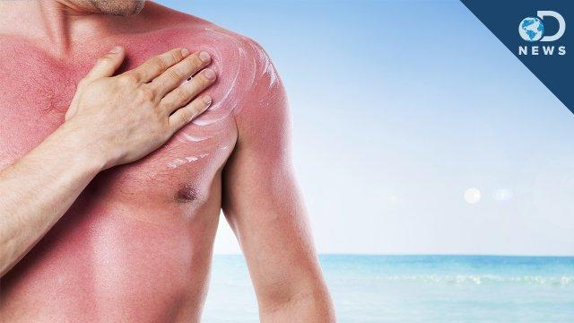 How Many Sunburns Can Cause Skin Cancer? - DNews