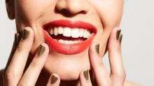 It Took Only 45 Minutes to Whiten Away Nearly 30 Years of Stains on My Teeth