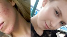 The Internet Is Losing it Over This Before-and-After Acne Photo