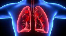 Ecco perchè il Covid uccide, nuovo studio sui polmoni