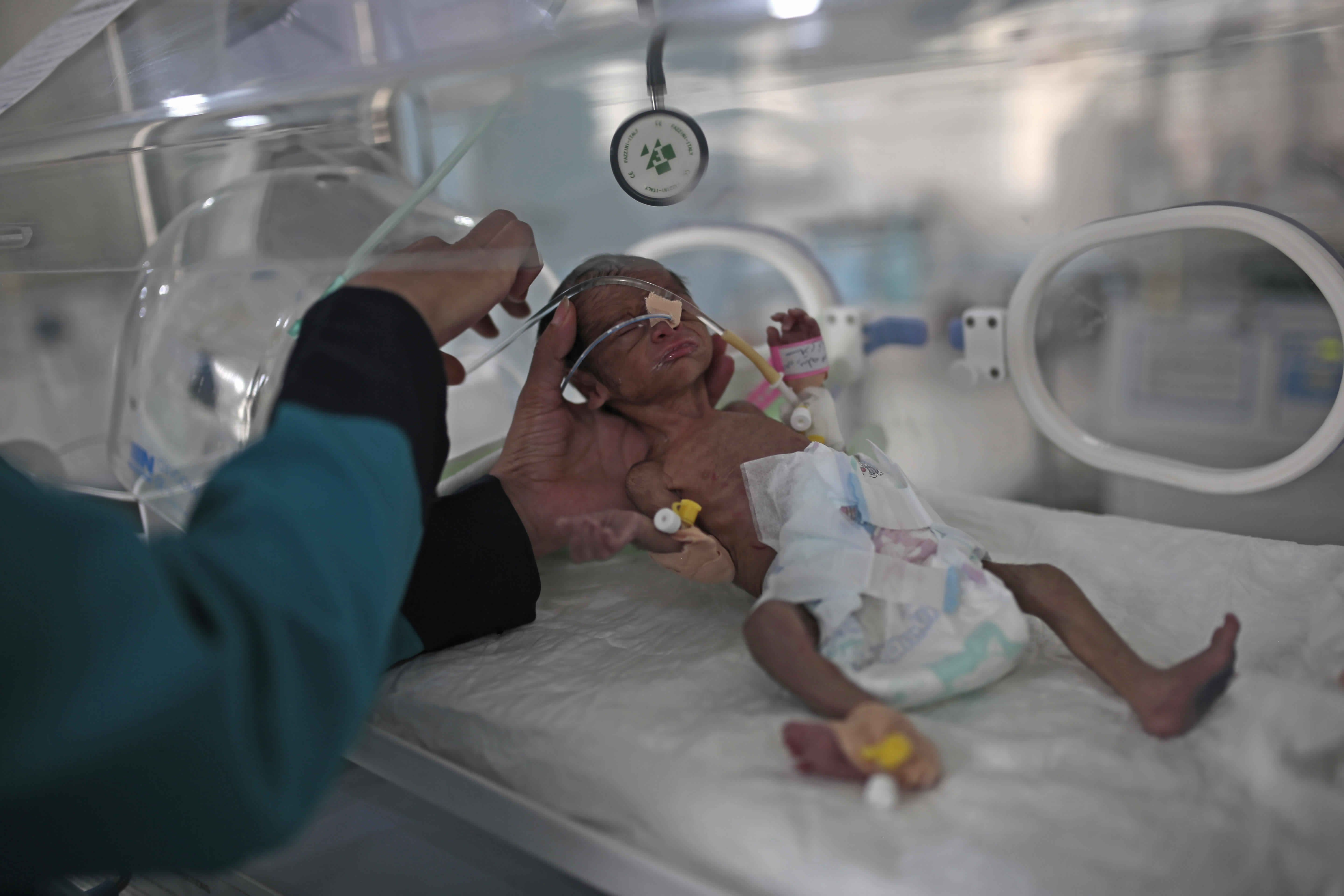 """FILE - In this June 27, 2020 file photo, a medic checks a malnourished newborn baby inside an incubator at Al-Sabeen hospital in Sanaa, Yemen. Human Rights Watch warned Monday, Sept. 14, 2020 that warring parties in Yemen's yearslong conflict are """"severely restricting"""" the delivery of desperately needed aid as the country slides toward famine amid the coronavirus pandemic. (AP Photo/Hani Mohammed, File)"""