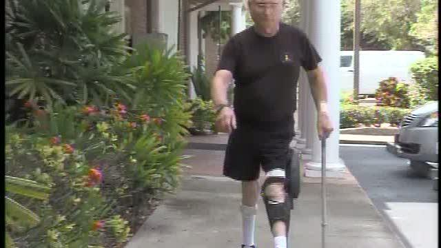 Sarasota man is first to use bionic leg in the United States