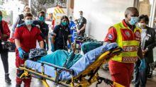Chirurgen in Südafrika bereiten Gesichtsrekonstruktion nach Hyänenangriff vor